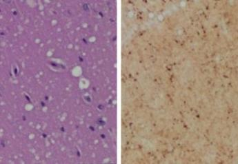 Staining (Left) shows spongiform degeneration. Staining (Right) shows intense misfolded prion protein.